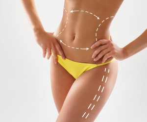 Liposuction Melbourne MPS