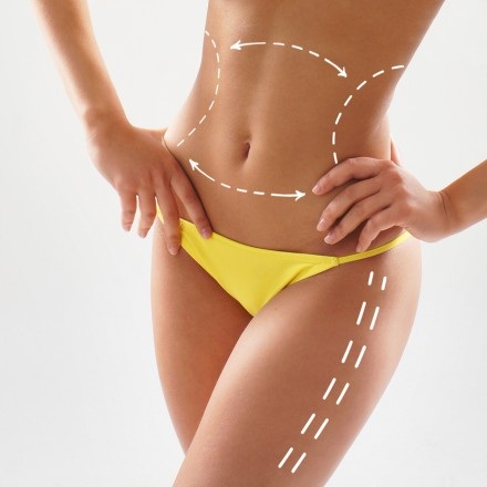 Liposuction Melbourne