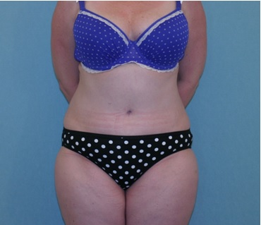 Abdominoplasty Patient 1 postop