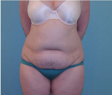 Abdominoplasty Surgery Melbourne  Patient 1 preop