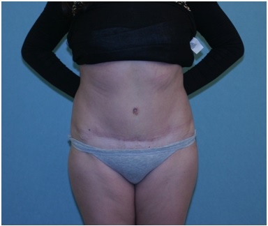 Abdominoplasty Patient 2 postop