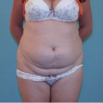 Tummy Tuck Abdominoplasty in Melbourne