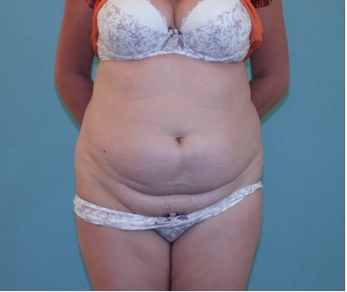 Abdominoplasty patient 2 Preop