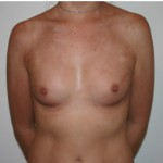 plastic surgery in melbourne for breast augmentation
