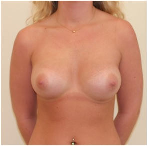 Breast Augmentation Patient 2 Postop