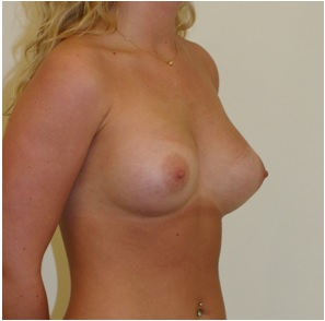 Breast Augmentation patient 2 postop oblique