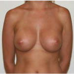 breast augmentation in melbourne plastic surgery