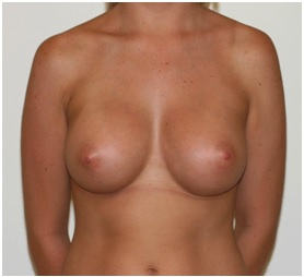 Breast Augmentation Patient 1 Postop Front