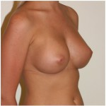 breast augmentation melbourne plastic surgery