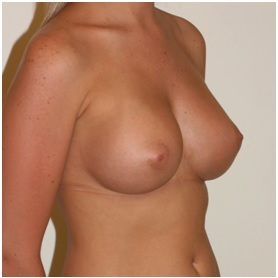 Breast Augmentation Patient 1 Postop Oblique