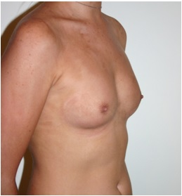 Breast Augmentation Patient 1 Preop Oblique