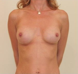 Breast Augmentation Patient 3 Postop Front