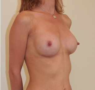 Breast Augmentation Patient 3 Postop Oblique
