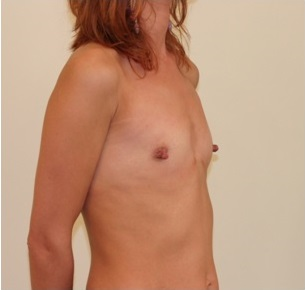 Breast Augmentation Patient 3 Preop Oblique