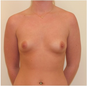 Breast Augmentation patient 2 preop front