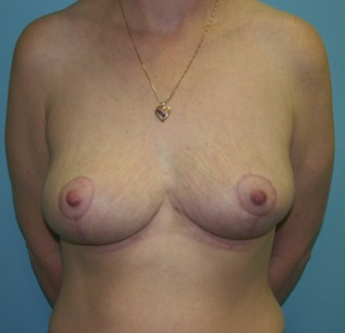 Breast Lift postop front