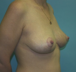 Breast Lift postop oblique
