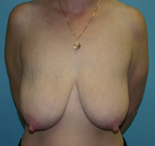 Breast Lift preop front