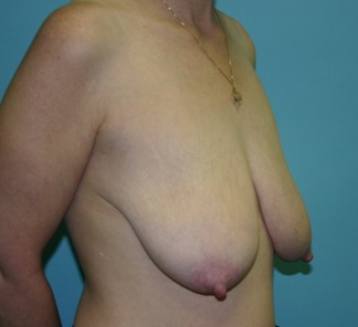 Breast Lift preop oblique