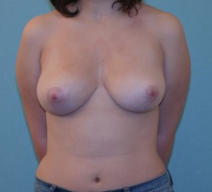 Breast Reduction Patient 1 postop
