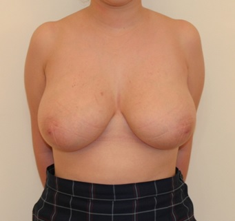 Breast Reduction Patient 1 preop