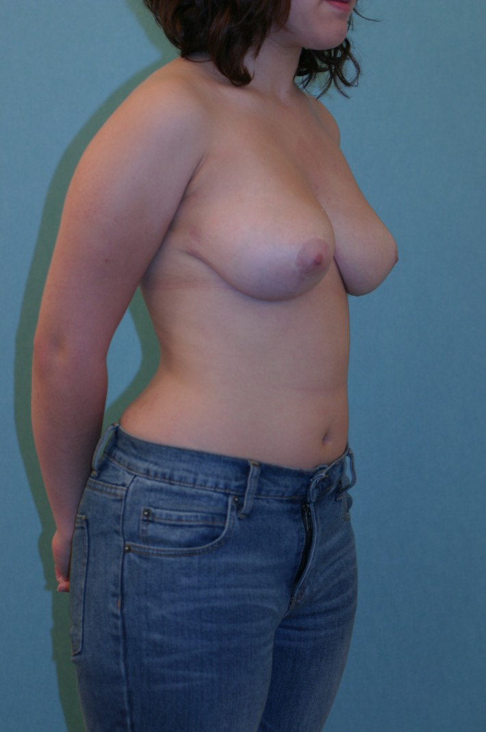 Breast Reduction patient 1 2 years post op