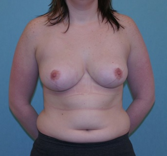Breast reduction patient 2 postop
