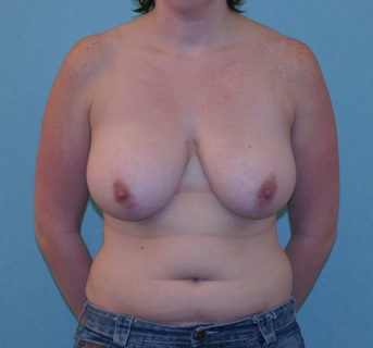 Breast reduction patient 2 preop