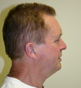 Facelift Melbourne Plastic Surgery Example