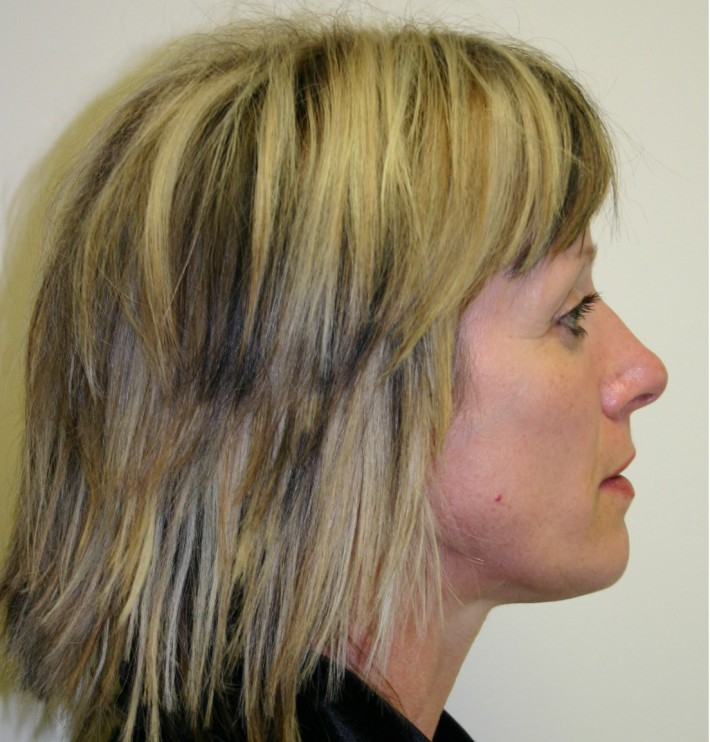 Facelift patient 1 preop side