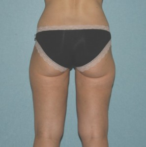 Liposuction patient 2 postop back