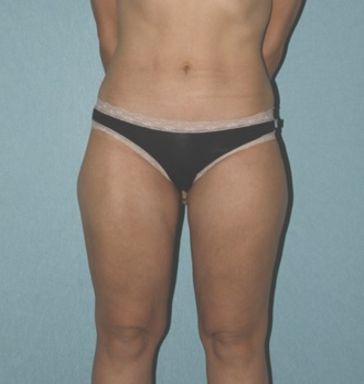 Liposuction patient 2 postop front
