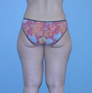 Liposuction patient 2 preop back