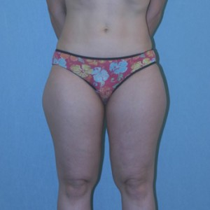 Liposuction patient 2 preop front
