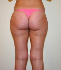 Liposuction patient 3 preop back