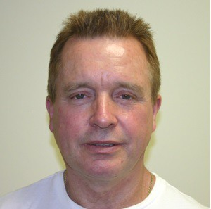 Male Facelift Preop MPS