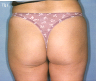 Liposuction Preop Melbourne Plastic Surgery