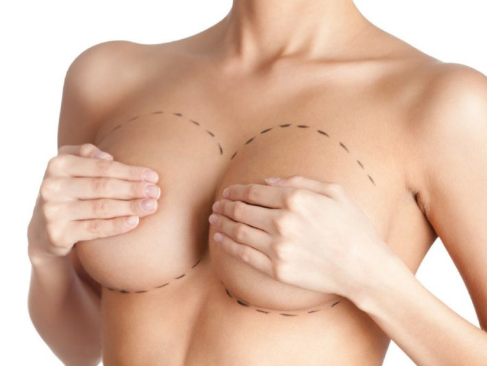 Breast Augmentation Surgery Melbourne