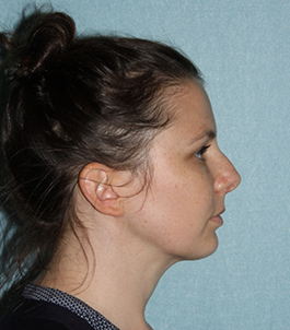 LiposuctionNeck_POST6WKSSIDE