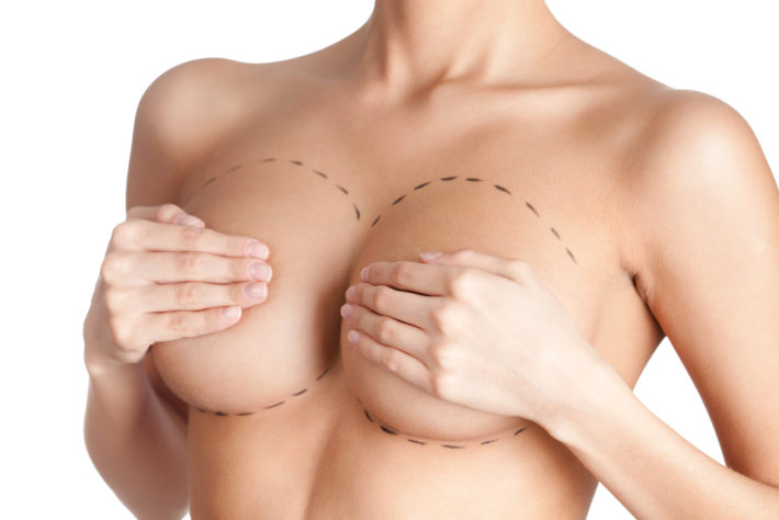 The Perfect Breast Augmentation Melbourne