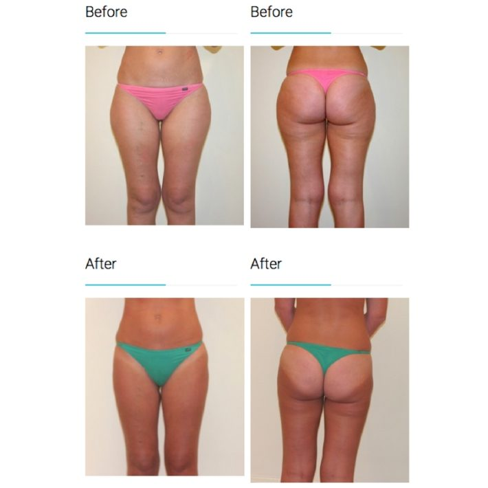 Liposuction melbourne Plastic Surgery1