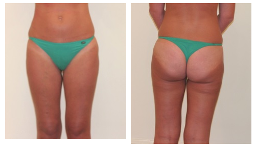 Liposuction versus Liposculpture; what does the terminology mean?