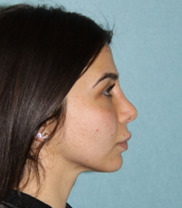 Rhinoplastey_POST 6WKS SIDE