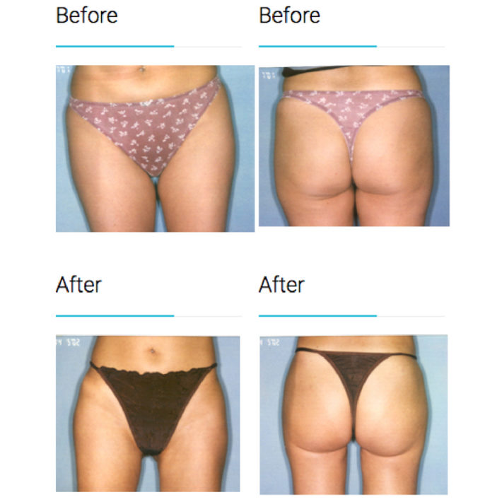 Buttock and Thigh Surgical Liposuction